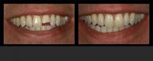 dental bonding 2