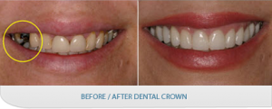dental-crown-before-after
